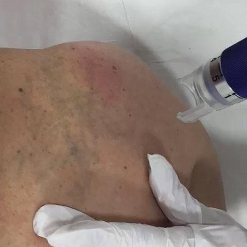 video-tatuaje-02