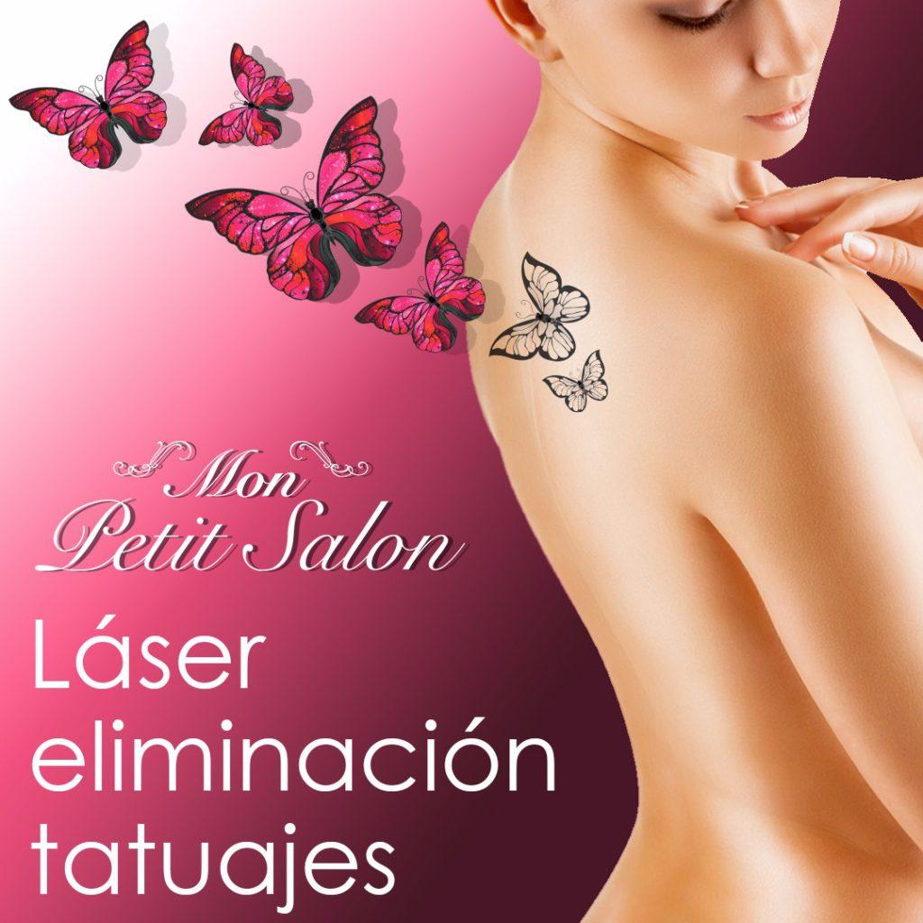 Laser eliminación de tatuajes | Mon Petit Salon